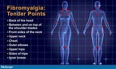 Fibromyalgie Symptome Test - treating fibromyalgia with acupuncture amaluna