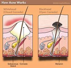 how do whiteheads form whiteheads blackheads and other acne lesions howstuffworks