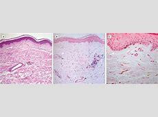 studies hydroxychloroquine covid19