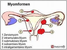 Myom In Der Gebärmutter - medizinfo 174 myom