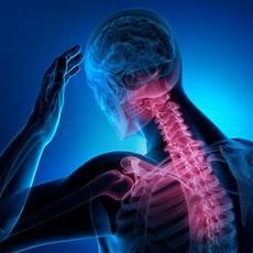 schwindelgefühl kopfschmerzen übelkeit müdigkeit schwindel nach schleudertrauma hws was tun