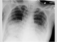 lung damage from pneumonia