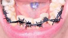 appareil dentaire d 233 sencyclop 233 die