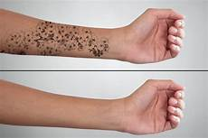 laser tattoo removal how long does the process take