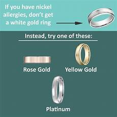 are you allergic to your wedding ring
