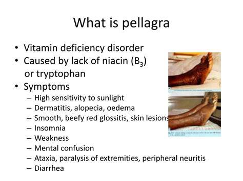 Niacin Deficiency Disease