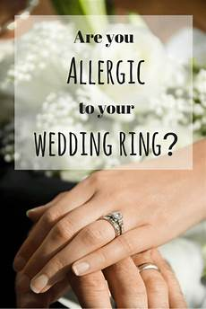 how your allergy to nickel may be causing wedding ring