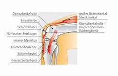 schmerzen im knie innen knieschmerzen kniebeschwerden praxisklinik 2000