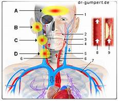 Abbildung Schmerzen Halsschlagader