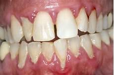 dents qui se déchaussent photos traitement laser assist 233 pour les dents d 233 chauss 233 es