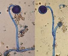 muc0r mucor mycology