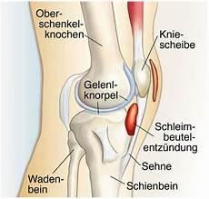 Schmerzen Unter Der Kniescheibe - entz 252 ndung in der n 228 he des kniescheibe entz 252 ndung