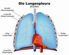 rippenfellentzündung schmerzen beim liegen pleuritis ursachen beschwerden therapie gesundpedia de