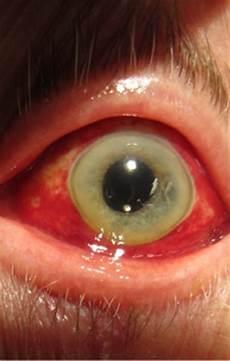 rottura vasi capillari occhio rosso
