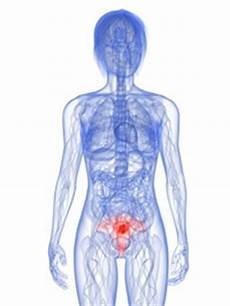 rippenfellentzündung schmerzen beim liegen geb 228 rmutterhalskrebs symptome