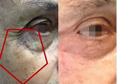 tumeur derrière l oeil la chirurgie r 233 paratrice par le docteur c 233 cile winter