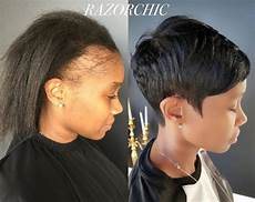 How To Style Hair With Traction Alopecia 5 ways to reduce traction alopecia elongtress