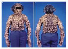 Re De Recklinghausen S Disease And Breast Cancer Nejm