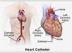 heart catheterization procedure