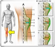 schmerzen im knie innen knieschmerzen auf der innenseite was steckt dahinter
