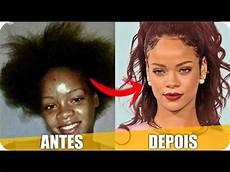 antes e depois antes e depois da fama