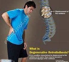retrolisthesis