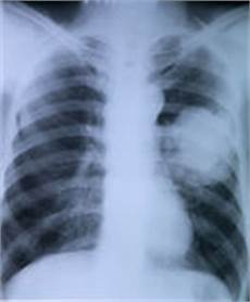 röntgenbild gesunde lunge r 246 ntgenbild des kastens stockfotos bild 33786993