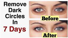 Dunkle Augenringe Ursache - 7 remedies for treating eye circles