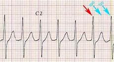 elektrokardiyografide kalp hızının hesaplanması