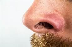 Gros Point Noir Sur Le Nez Causes Et Traitements Possibles