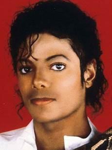 Michael Jackson Vitiligo - michael jackson s dermatologist and former plastic surgeon