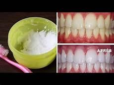 weiße zähne hausmittel wei 223 e z 228 hne in 10 minuten gelbe z 228 hne aufhellen mit