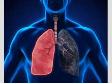 pneumonia with copd guidelines