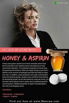 honey aspirin die besten hausmittel gegen akne zit