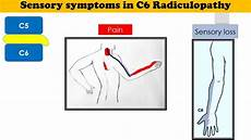 C6 Radiculopathy