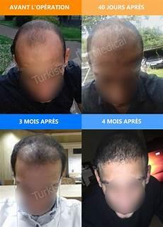 greffe de cheveux fue d un patient venu de belgique a 4