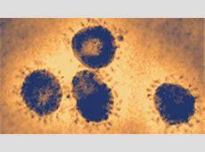 what are some coronavirus symptoms