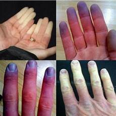 What Are Causes Of Raynaud S Quora