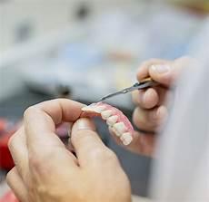 protesi dentali mobili protesi dentarie lodi protesi fisse e mobili studio