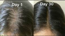 vitamin e juice for hair growth hair