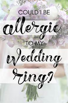 how to treat wedding ring rash do your rings leave your finger and itchy here s what i