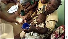 blog defici 234 ncias on line que tristeza em imagens a fome