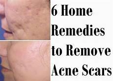 goodbye goo hello sheet mask magic acne scars home remedies and benefits of