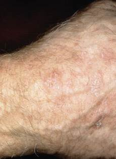 Hautkrebs Bilder Anfangsstadium - early detection and treatment of skin cancer american