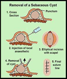 Diagram Of Sebaceou Cyst In by Sebaceous Cyst Surgical Removal Survival Jlo