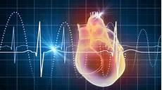 Penderita Jantung Hindari Konsumsi Cokelat