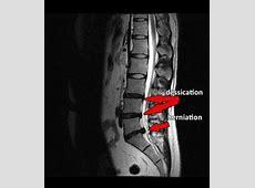 lower back pain when breathing in