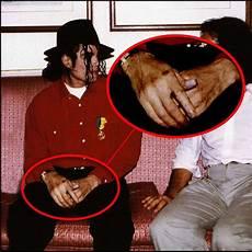 Michael Jackson Vitiligo - dreaming on the moon di 225 de uma f 227 vitiligo