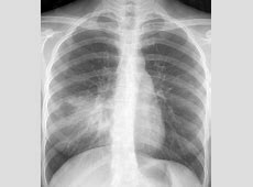 chest x ray with pneumonia