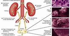 Infeksi Saluran Kemih Asuhan Keperawatan